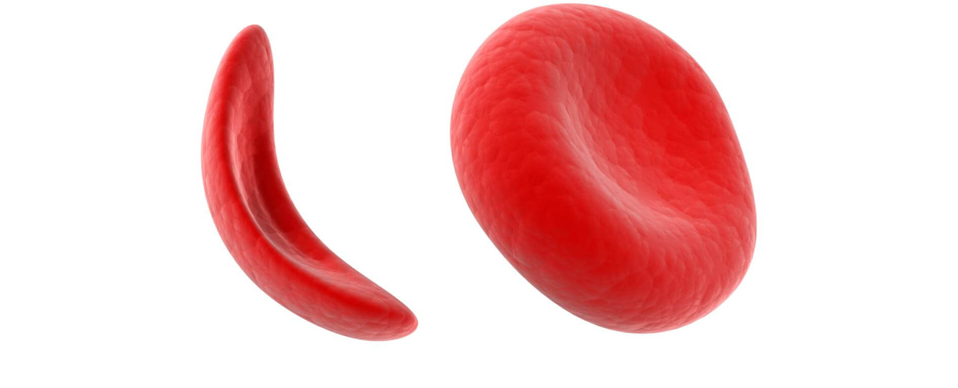 sickle cell anemia Sickle cell anemia is a genetic condition that affects hemoglobin, the part of red blood cells responsible for carrying oxygen from the lungs to the rest of the body.